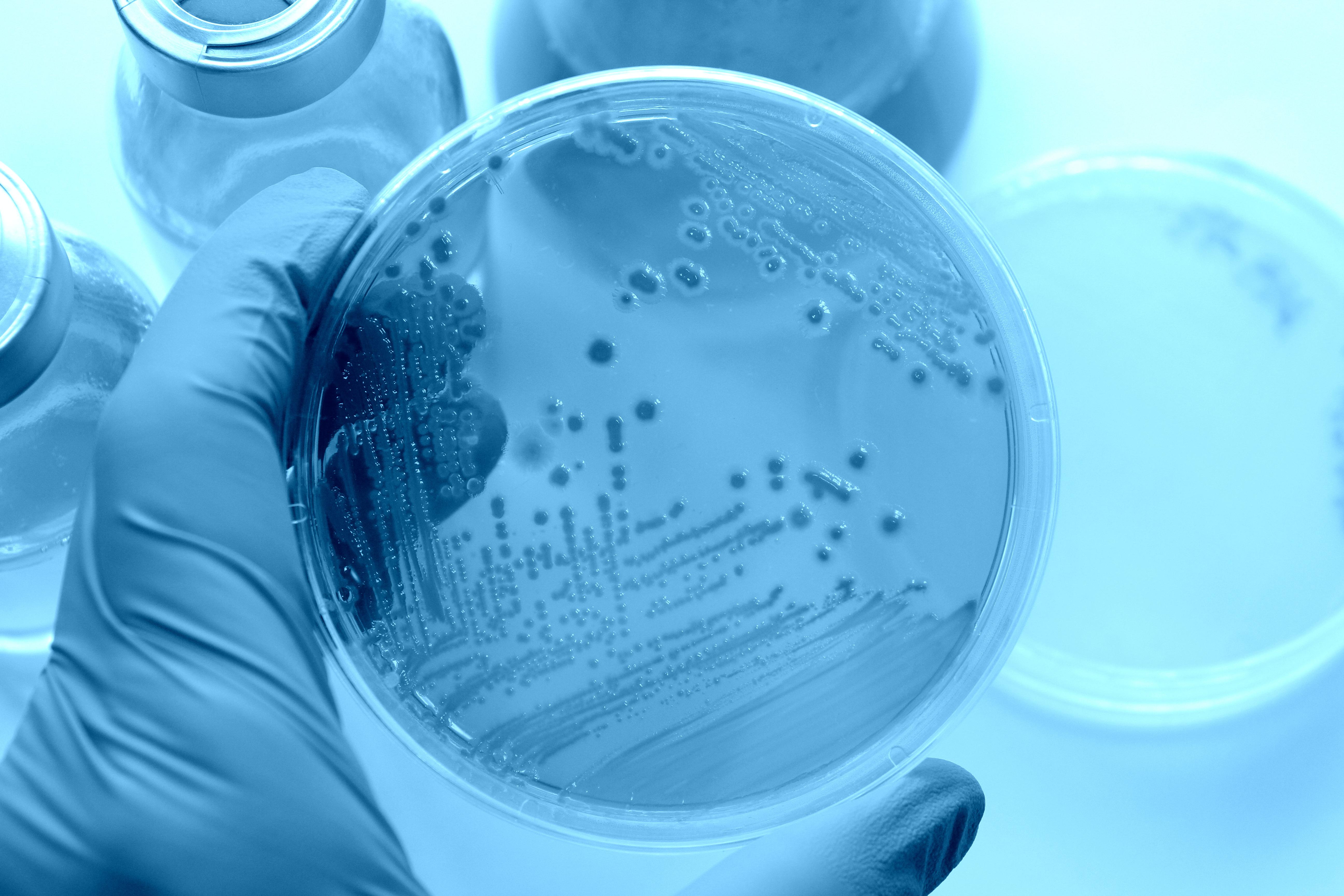 Des changements dans le microbiome intestinal apparaissent liés à un comportement semblable au comportement observé dans la maladie d'Alzheimer (Visuel Adobe Stock 78527054)