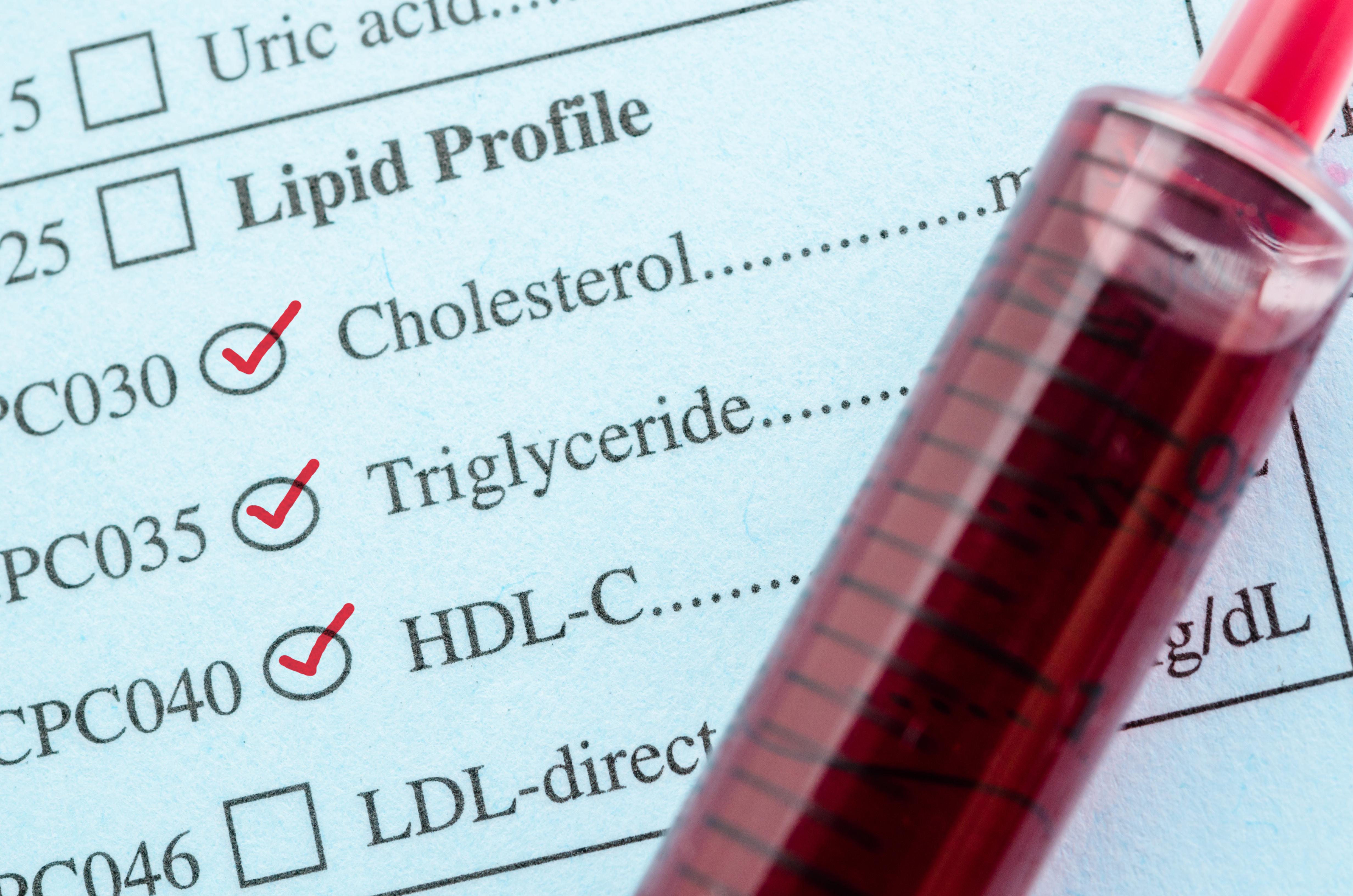 Le « bon » cholestérol HDL (High Density Lipoprotein) peut prévenir l'inflammation du foie (Vkisuel Adobe Stock 111046439)