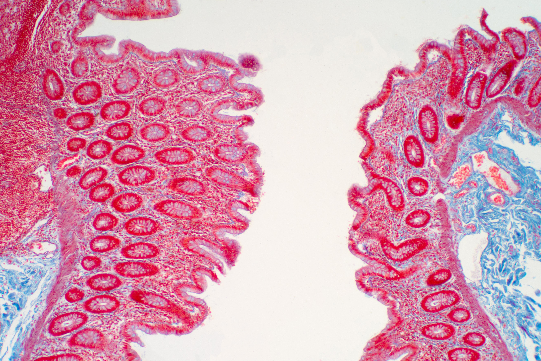 La consommation de fructose altère les cellules du tube digestif et lui permet d'absorber encore plus de nutriments (Visuel Adobe Stock 334045085)